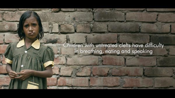 This film on cleft lips will tug at your heartstrings